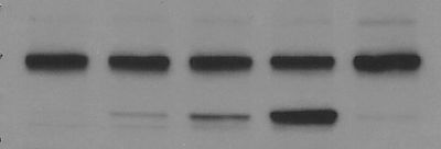 Example of a publication quality Western blot.